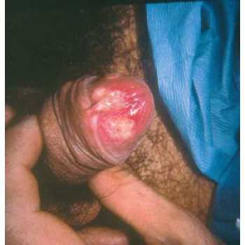 Хламидиоз - Хламидиоз - Половые инфекции - Энциклопедия - MedPortal