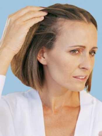 Андрогенное выпадение волос у женщин, лечение алопеции и женского облысения, редкие волосы - врач дерматолог трихолог - трихологический центр в Москве, врач дерматолог трихолог